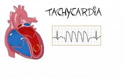 Profilový obrázek tachycardia