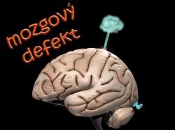 Profilový obrázek Mozgový defekt