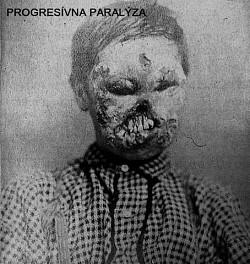 Profilový obrázek Progresívna Paralýza