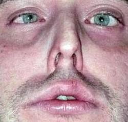 Profilový obrázek GENDŽONG BLENKS