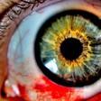 Profilový obrázek Bloody Eyes